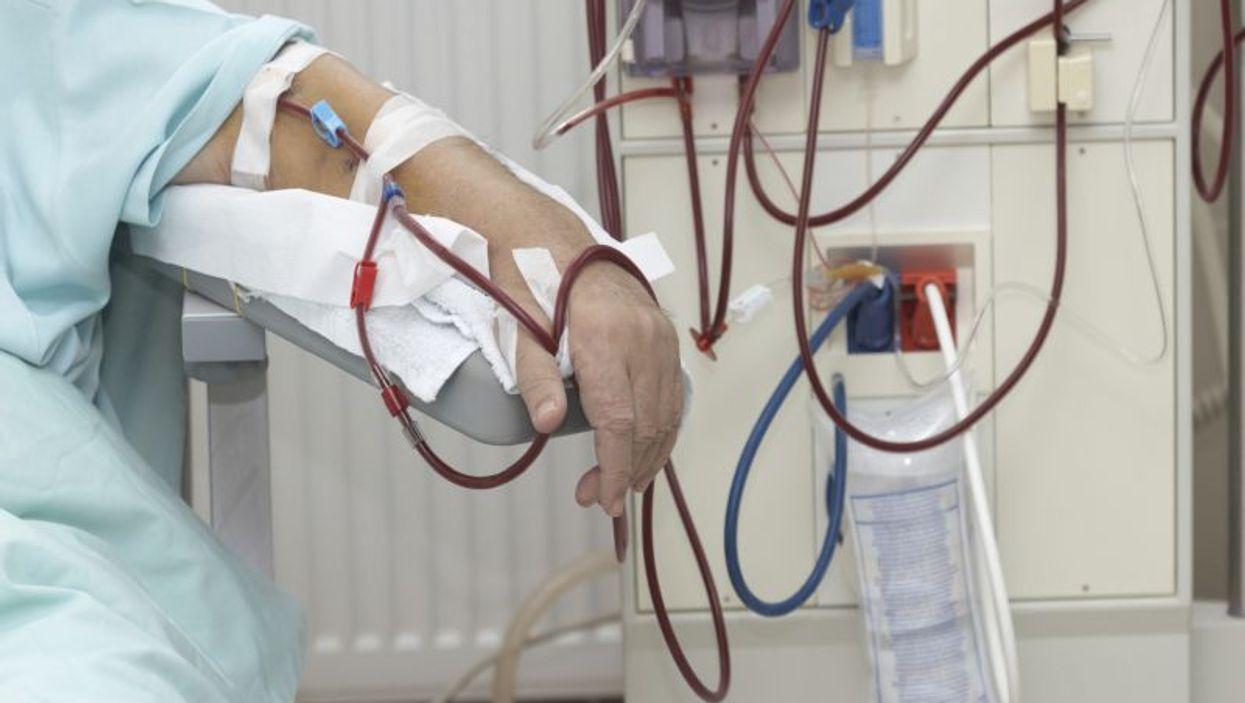 1 in 7 Americans Has Kidney Disease: CDC