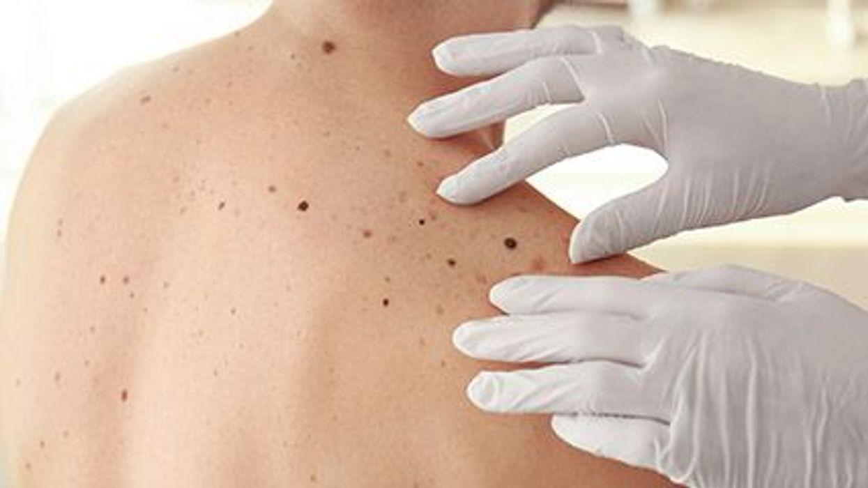 Moles and Melanoma