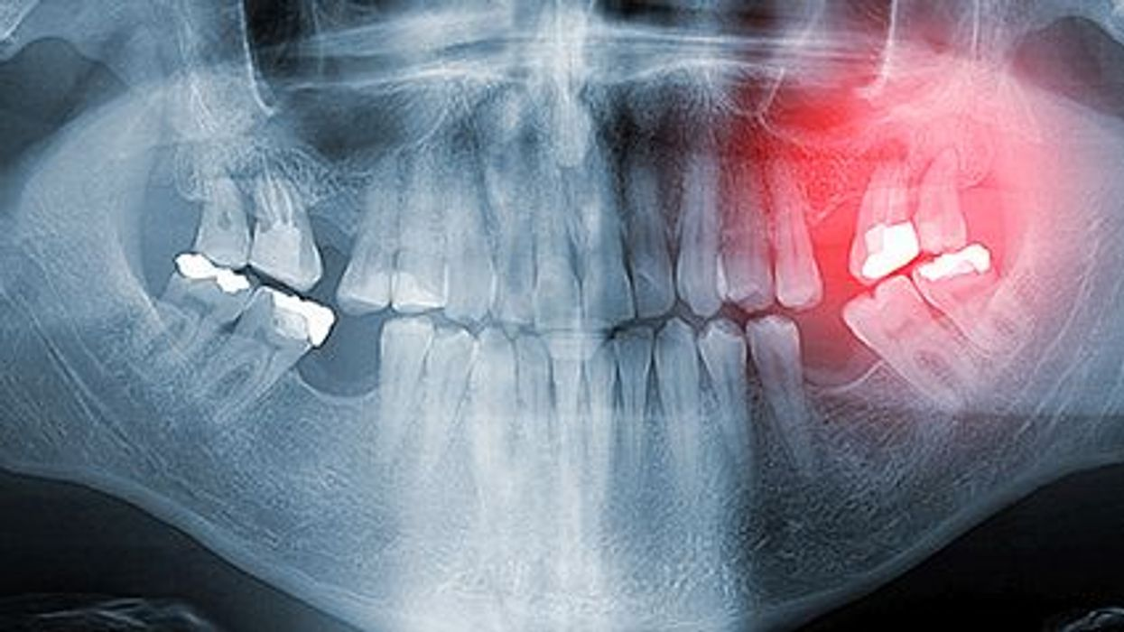 Gum Disease and Cancer Risk