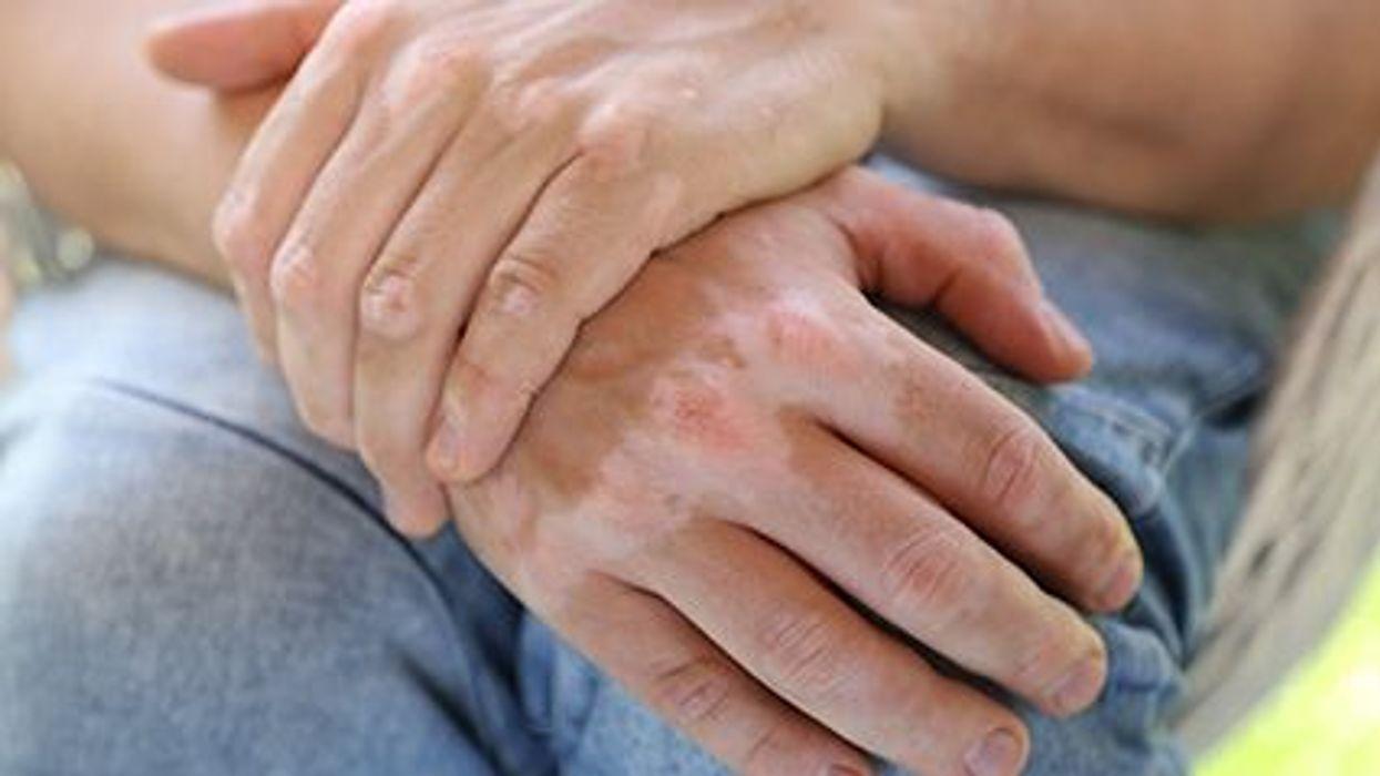 ¿Un tratamiento prometedor para el vitiligo?