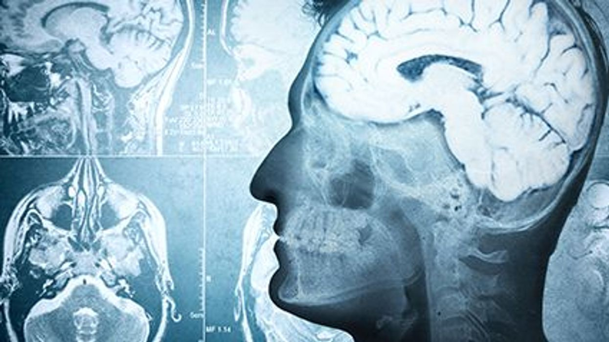Health Diet, Healthy Brain?