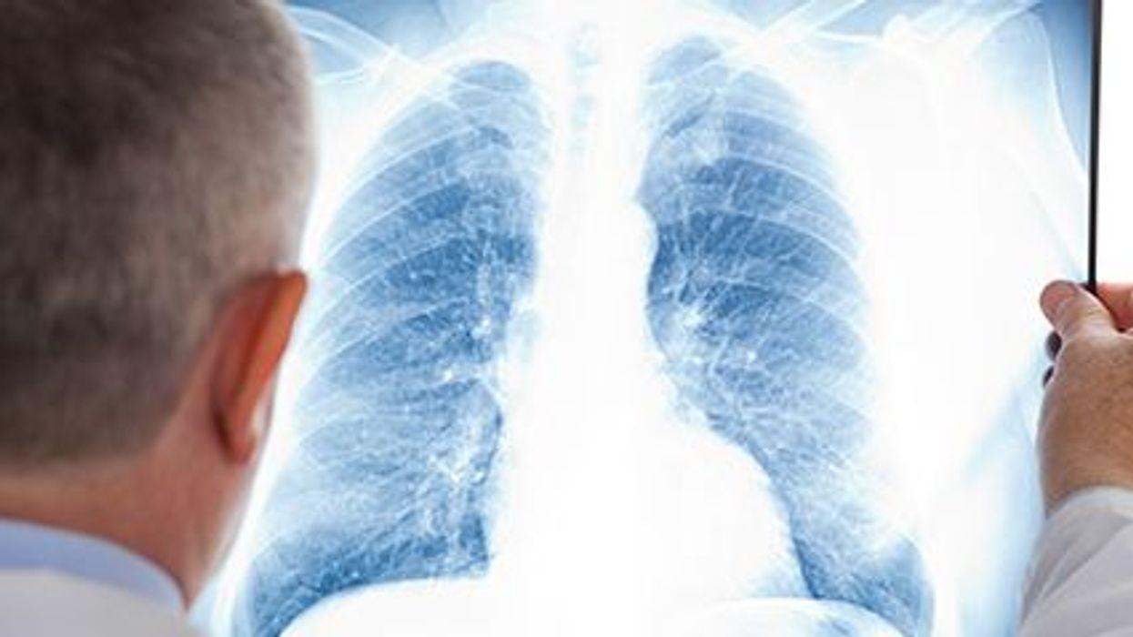 Detección del cáncer de pulmón