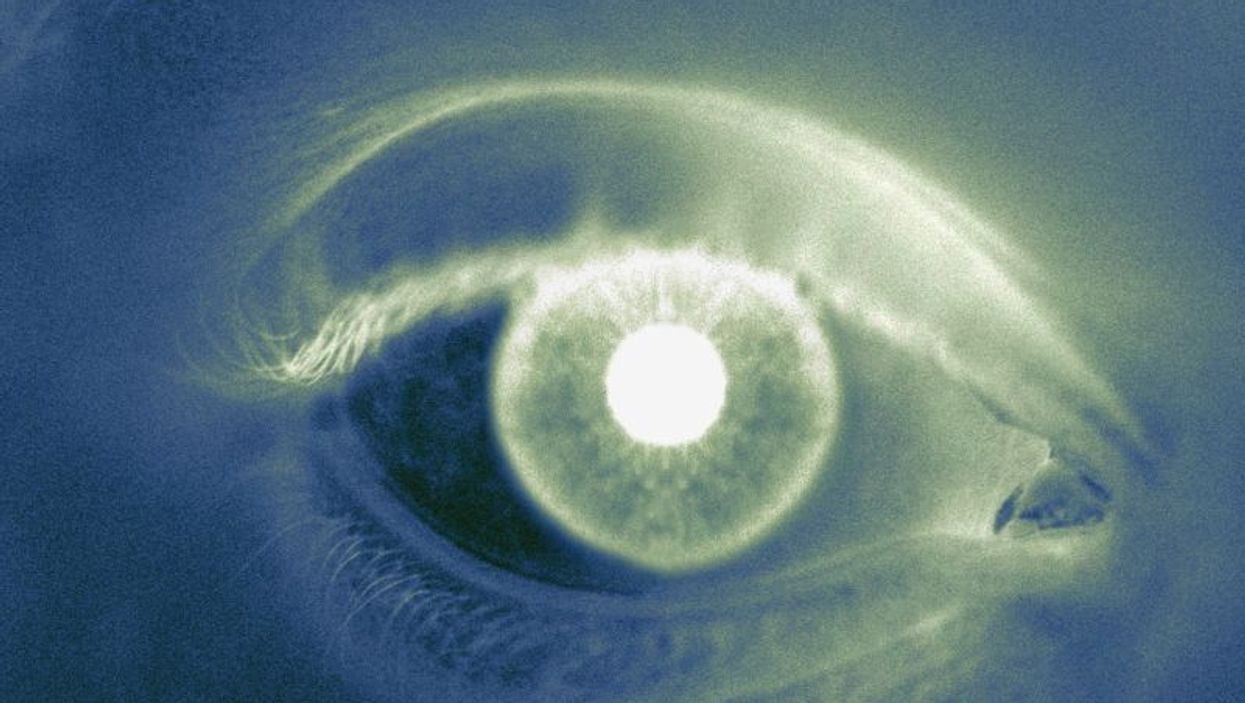 Have Glaucoma and Need to Switch Eye Docs? Here's What You Need to Do