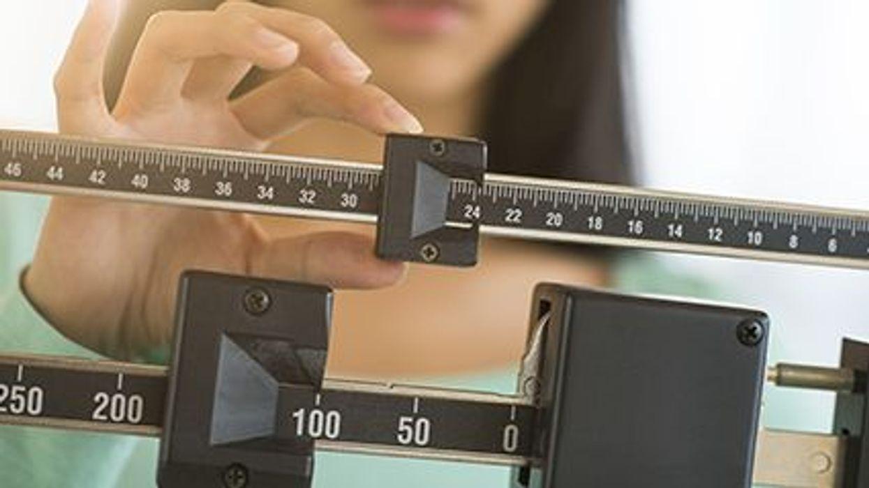 La fibrilación auricular y el peso