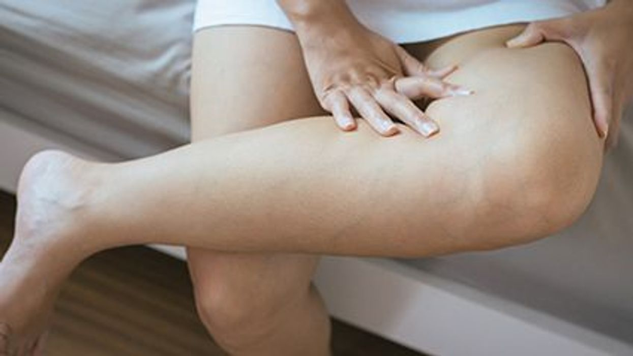 Do You Need to Worry About Deep Vein Thrombosis?