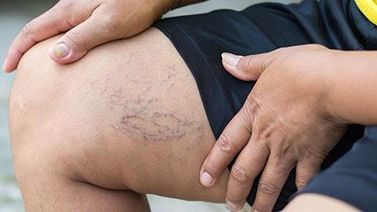 What Causes Varicose Veins?