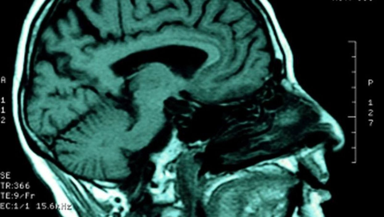 HIV Lurking in Spinal Fluid Linked to Thinking Problems