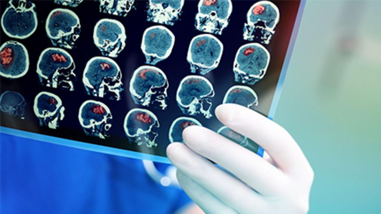 Se reportan cada vez más complicaciones cerebrales graves entre los pacientes con COVID-19, de acuerdo con un estudio nuevo