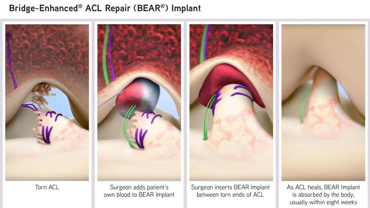 Bridge-Enhanced ACL Repair (BEAR) Implant