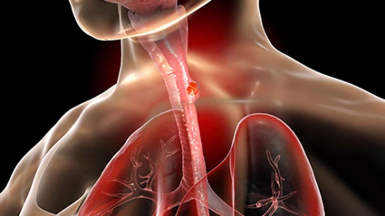 Un estudio nuevo halló que el cáncer del esófago va en aumento en los adultos más jóvenes