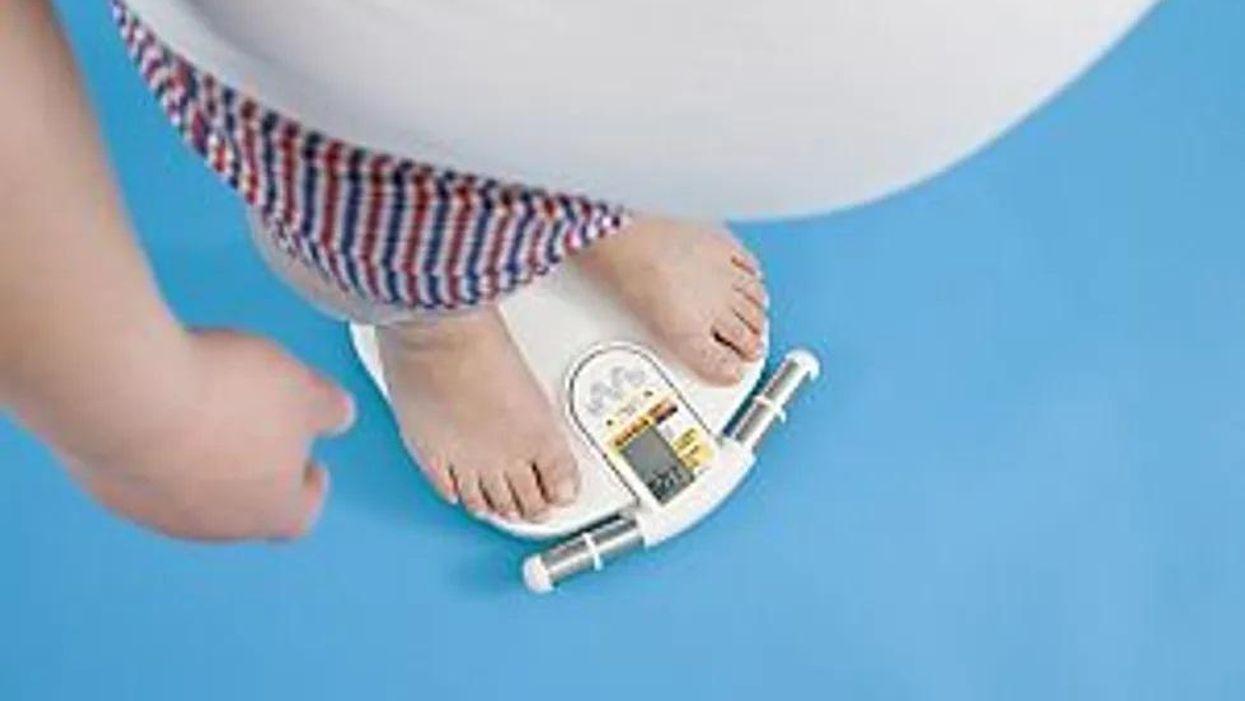 肥満手術で心血管イベントおよび死亡のリスクが低下する可能性
