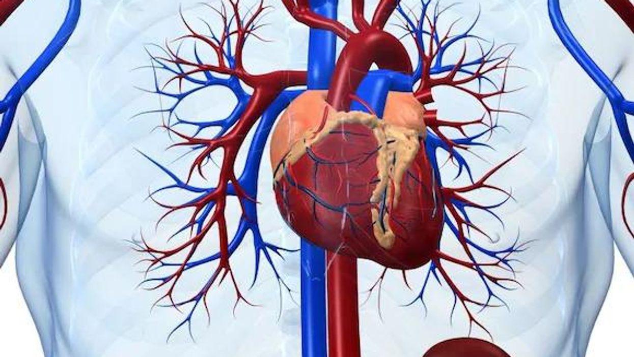 冠動脈カルシウムスコアは冠動脈性心疾患のリスク予測に有用