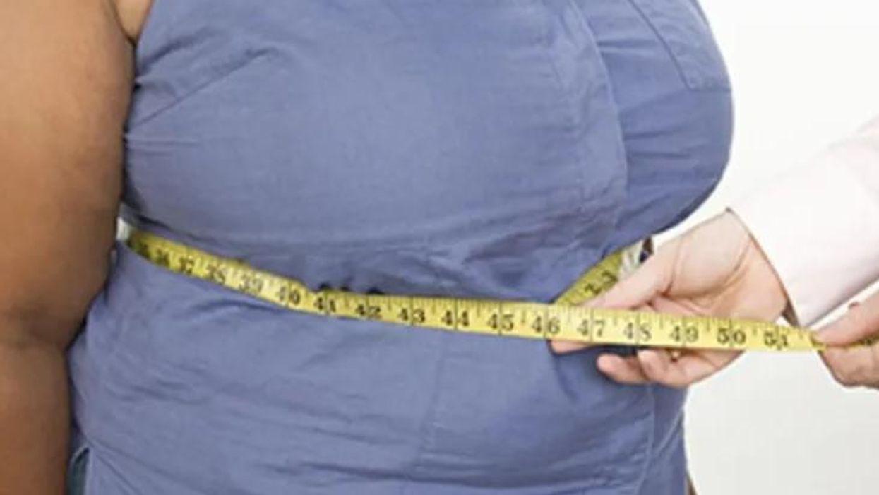 大腸がんリスクに対する肥満の影響に男女差か