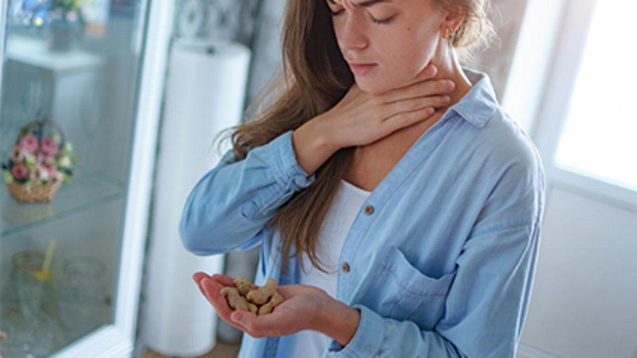 Un estudio nuevo halló que muchas personas están desarrollando alergia al maní o cacahuate en la edad adulta