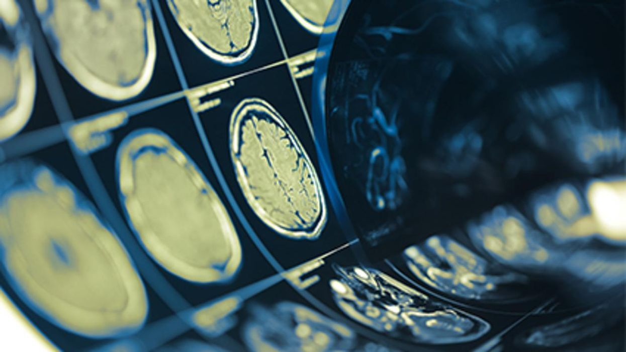 Las conmociones cerebrales están vinculadas a los trastornos del sueño a largo plazo, halló un estudio nuevo