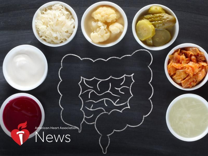 AHA News: As Fermented Foods Rise in Popularity, Here's What Experts Say