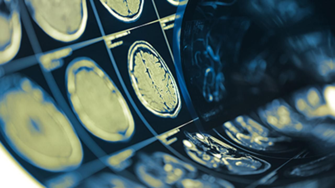 AI Algorithm Uses Brain MRI to ID Multiple Sclerosis Subtypes