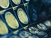 AI Algorithm Uses Brain MRI to ID Multiple Sclerosis Subtypes
