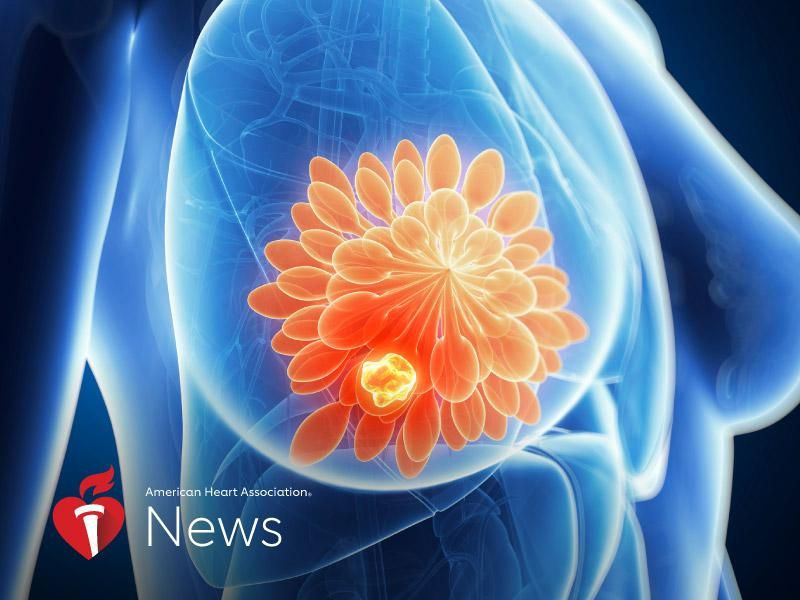 News Picture: AHA News: Cancer May Cause Changes to the Heart Before Treatment
