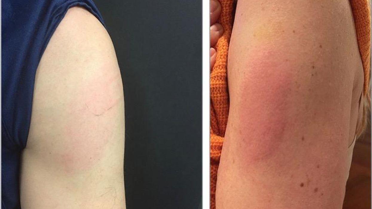 COVID vaccine reaction skin