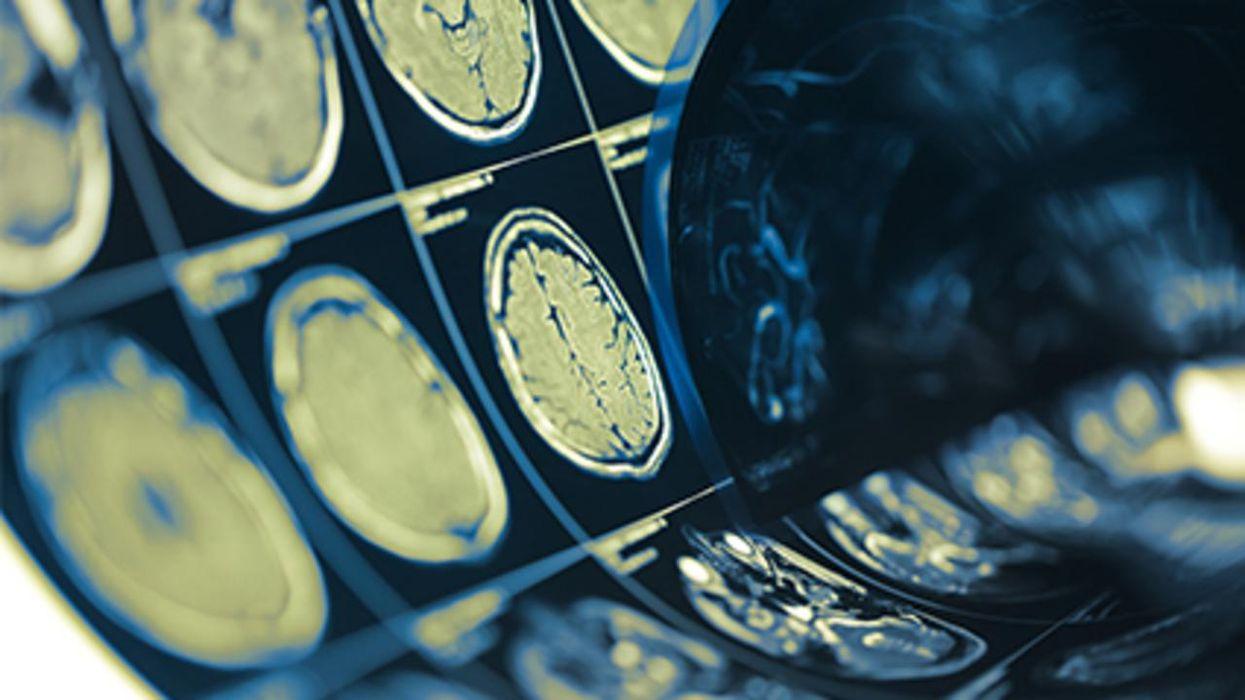 Un estudio nuevo halló que tener TOC triplica las probabilidades de sufrir un accidente cerebrovascular