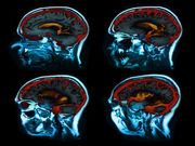 La thérapie de stimulation cérébrale profonde pourrait aider les patients atteints de la maladie de Parkinson sur le long terme