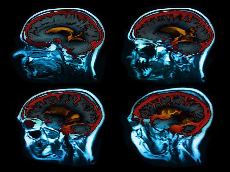 Deep Brain Stimulation Therapy May Help Parkinson's Patients Long Term