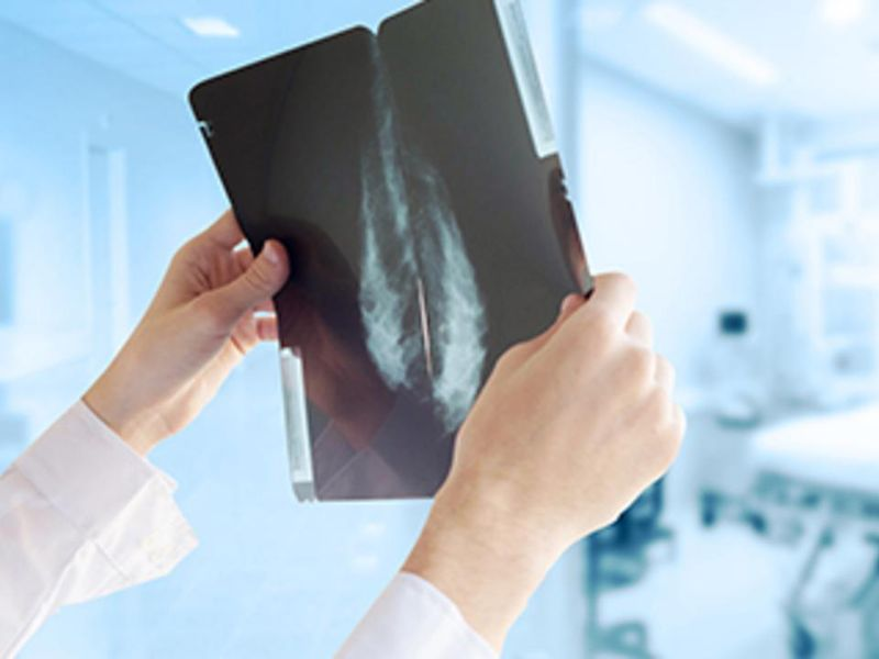 Having Sufficient Vitamin D Improves Breast Cancer Outcomes, Study Finds