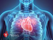 AHA News: Silent Heart Attacks All Too Common, and Often Overlooked