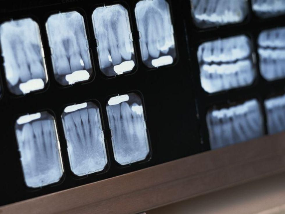 News Picture: Missing Teeth, Higher Odds for Dementia?