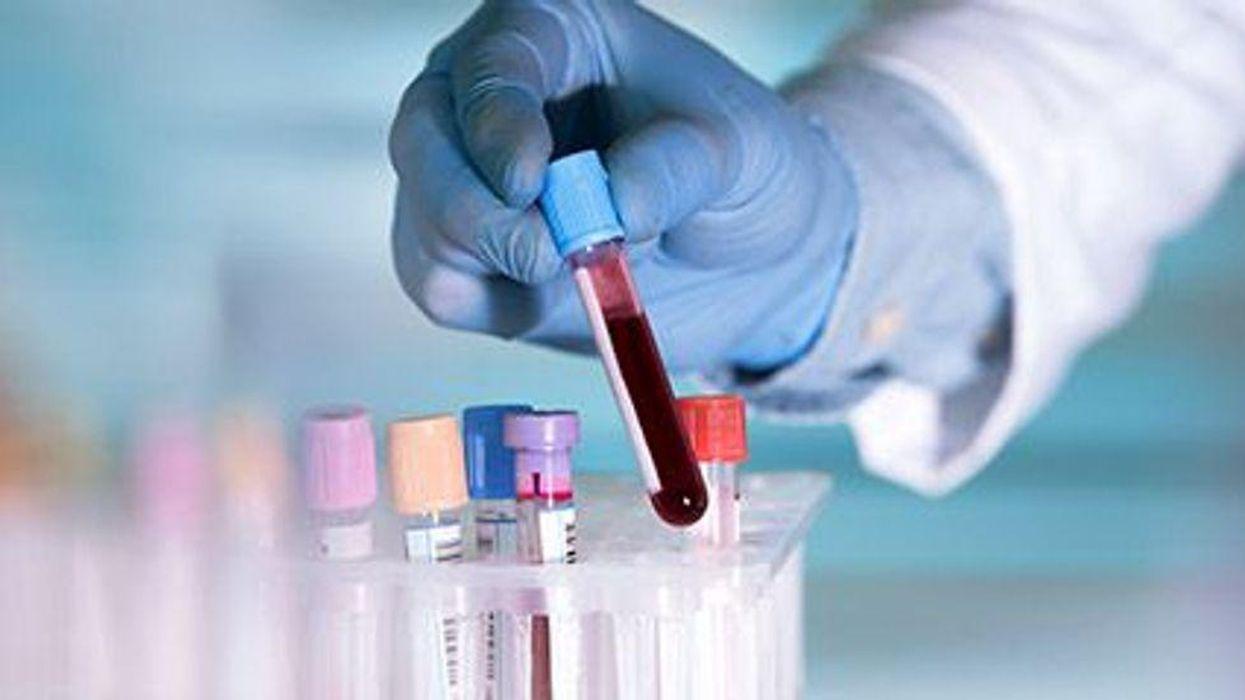 blood samples in a little bottles