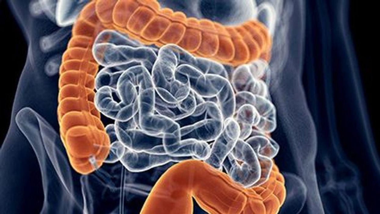 Guidance Updated for Managing C. difficile Infection in Adults