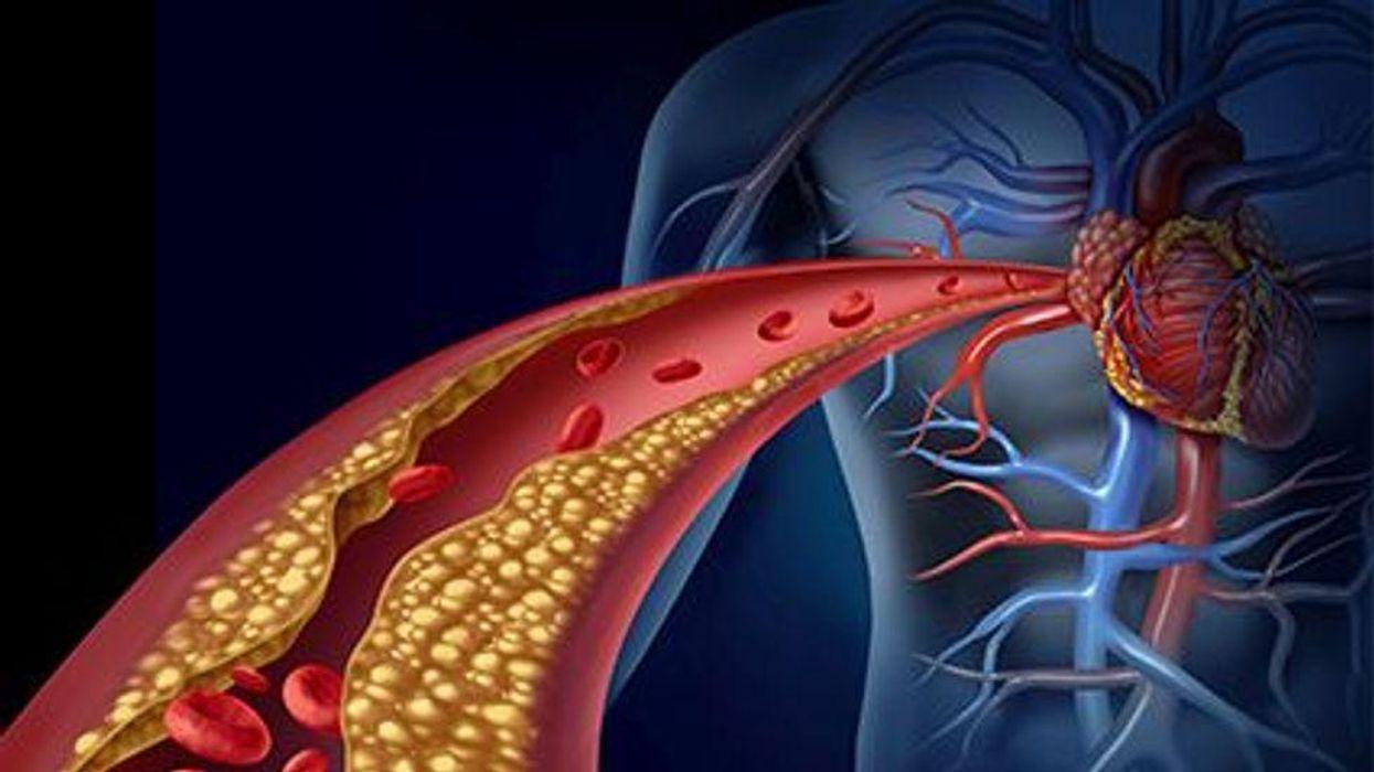 a diagram of a arteries