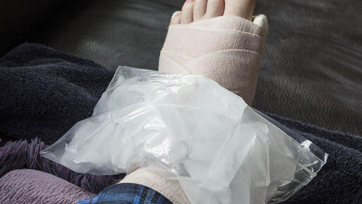 a foot in a cast with the ice-pack on the ankle