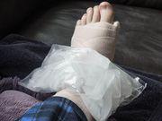 Caviglia rotta? Cos'è meglio, un gesso o un tutore?