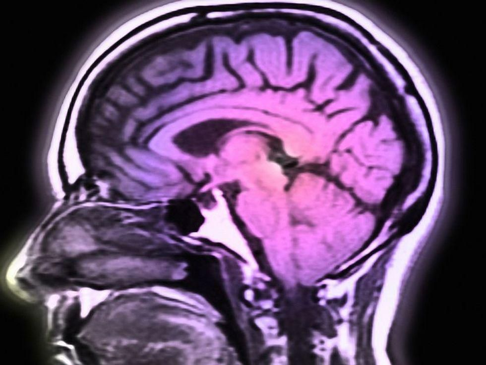 News Picture: Stroke Prevented His Speech, But Brain Implant Brought It Back