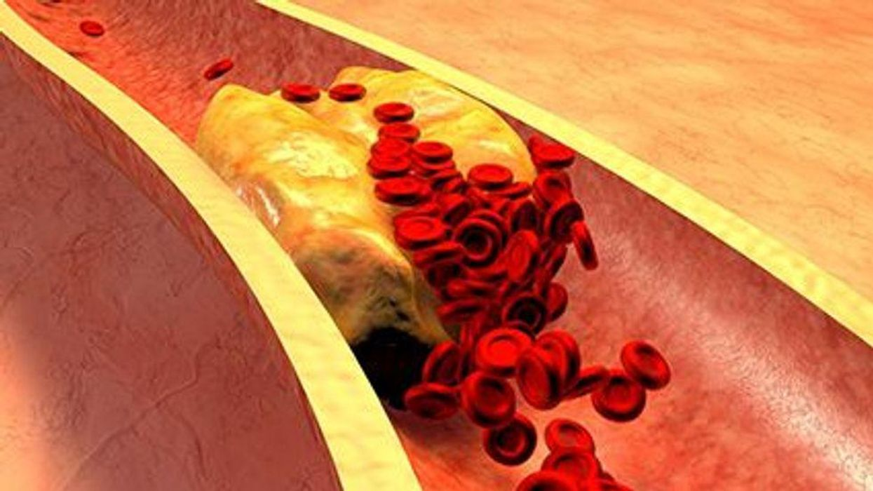 Cholesterol Dangers