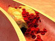 El síndrome metabólico se vincula a un mayor riesgo de recurrencia del accidente cerebrovascular