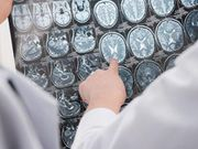 CT Findings Tied to Prognosis in Mild Traumatic Brain Injury