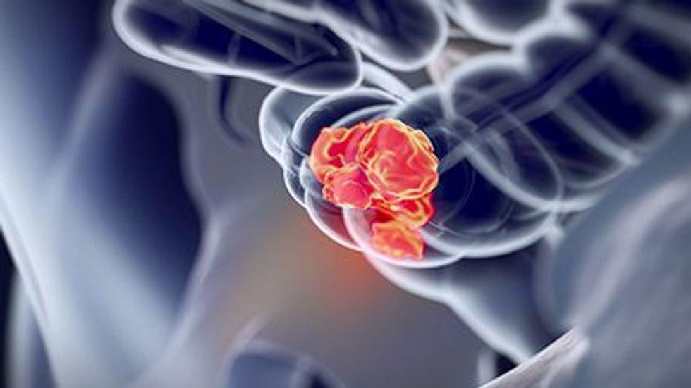 La prueba inmunoquímica fecal multiobjetivo aumenta la precisión diagnóstica