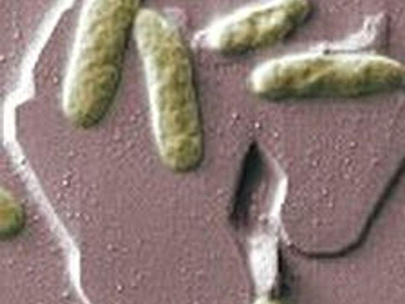 4th Case of Tropical Bacterial Illness Found in United States: CDC