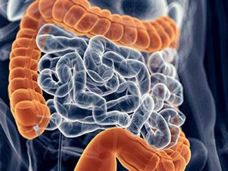 Incomplete Polyp Removal During Colonoscopy Can Bring Cancer Danger