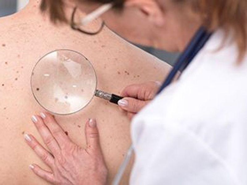 New Drug Might Be Non-Surgical Option for Common Skin Cancers