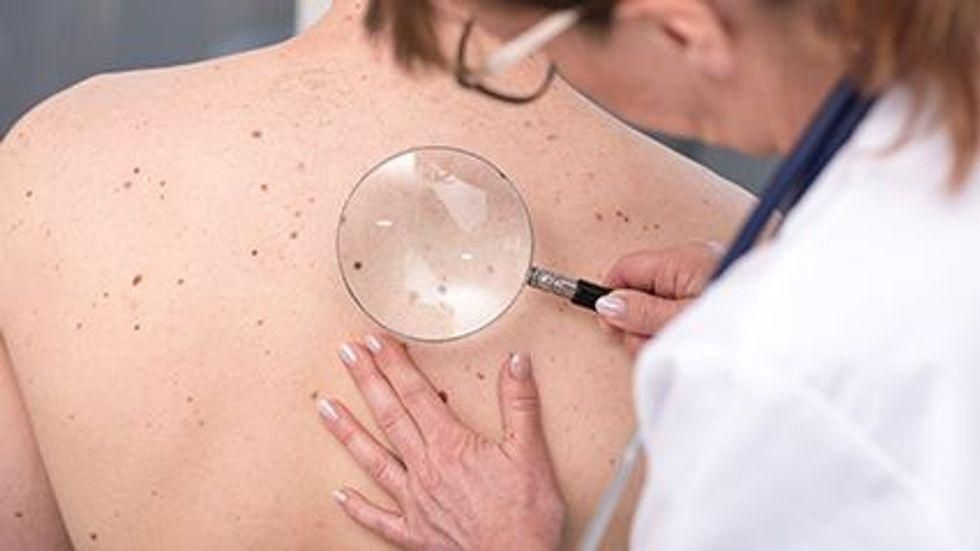 News Picture: One Key Question Can Help Spot Skin Cancer