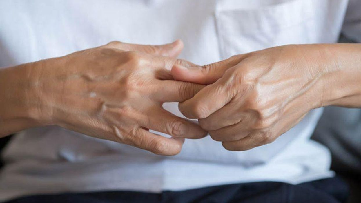hands of a person with arthritis