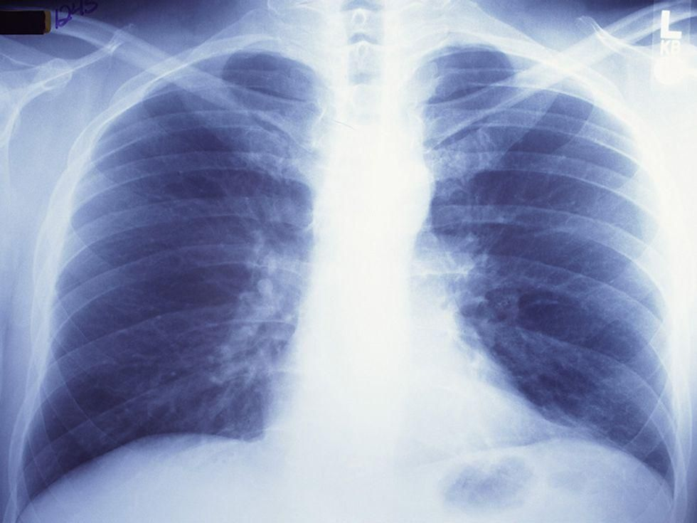 News Picture: High Viral Load in Lungs Drives Fatal COVID-19: Study