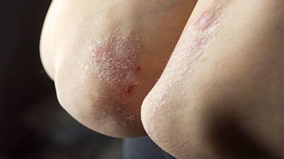 Le psoriasis n'est pas associé aux marqueurs précliniques de la démence