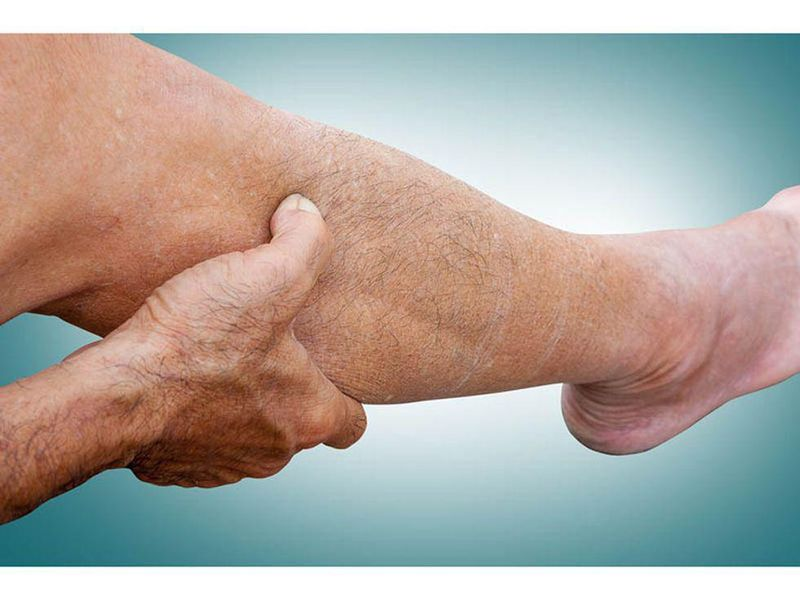 News Picture: Peripheral Artery Disease: Common, and Here's How to Spot It
