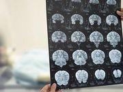 Forma e tamanho das artérias cerebrais podem prever risco de AVC
