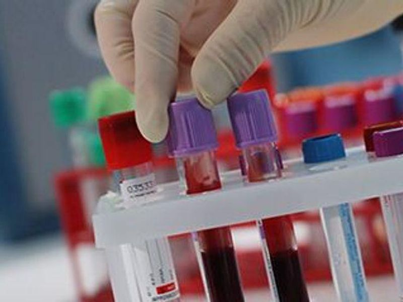 New Tests for Colon, Prostate Cancer Show Promise